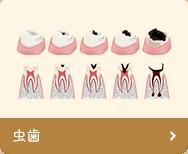 虫歯(う蝕)