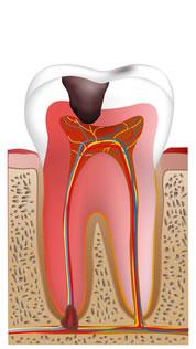 ①重度の虫歯