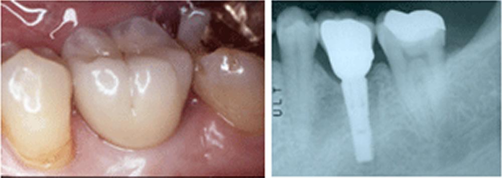 セラミック歯を装着し完成