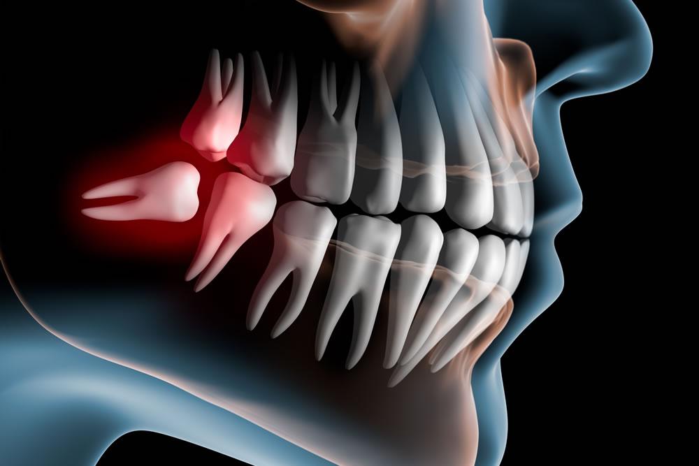 親知らずの抜歯に伴うリスク